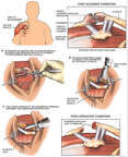 Right Acromioclavicular Separation with Surgical Repairs