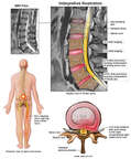 Lumbar Spine Injuries