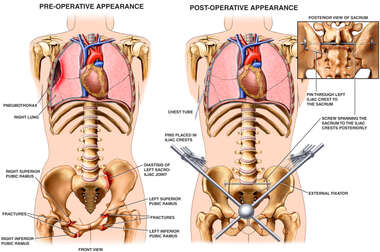 Female Torsos with Post-accident Injuries to the Thorax and Pelvis and Subsequent Surgical Repairs