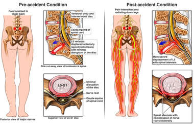 Progression of Spinal Condition