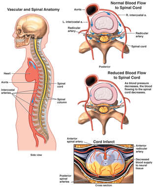 Reduced Blood Pressure with Injury to the Anterior Spinal Cord