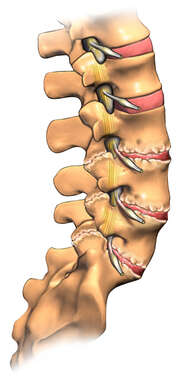 Degenerative Lumbar Discs and Vertebral Bodies