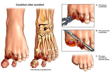 Left Toe Injuries with Surgical Debridement