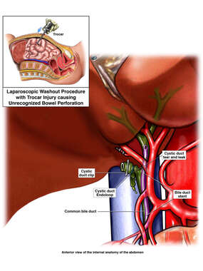 Intraoperative Condition - Laparoscopic Washout Procedure and Stent Placement