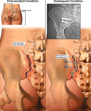 Left Sacroiliac Joint Disruption
