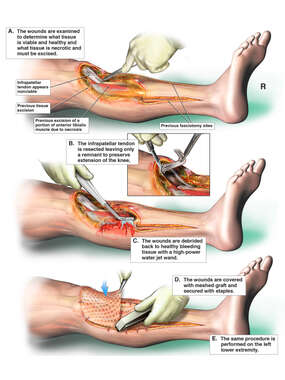 Multiple Debridement Procedures