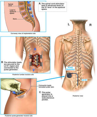 Implantation of Spinal Cord Stimulator and Pulse Generator