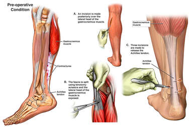 Leg Muscle Contractures with Surgical Repairs