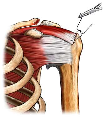 Left Shoulder Rotator Cuff Repair