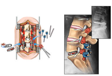 Lumbar Disc Injury with Surgical Discectomy and Fusion