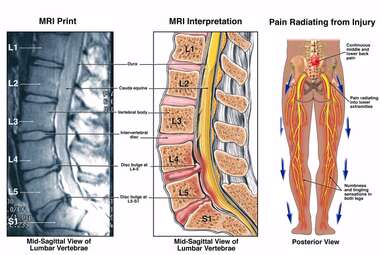 Low Back Pain - L4-5 and L5-S1 Lumbar Injuries
