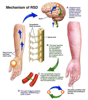 Post-Traumatic Reflex Sympathetic Dystrophy (RSD)/Complex Regional Pain Syndrome (CRPS) Diagram