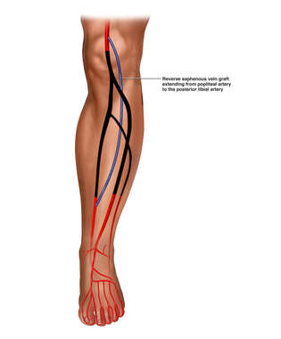 Proposed Left Leg Arterial Bypass Procedure