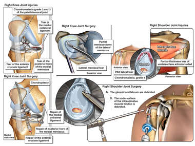 Shoulder and Knee Surgeries