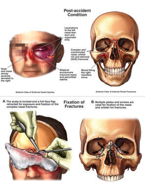 Traumatic Facial Injuries with Surgical Placement of Plates and Screws