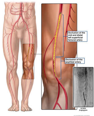 Arterial Blockage of Left Leg