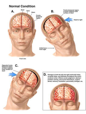 Mechanism of Side to Side Closed Head Injury