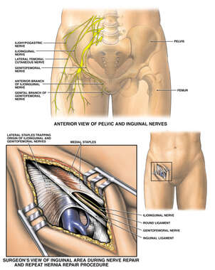 Post-operative Condition with Inguinal Nerve Entrapment