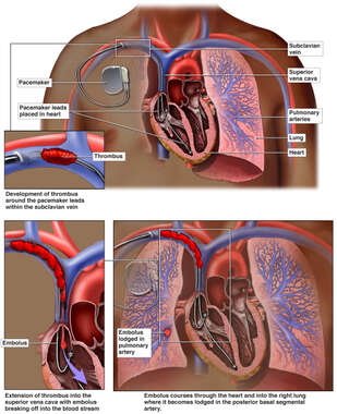 Development of Pulmonary Embolus Following Pacemaker Placement