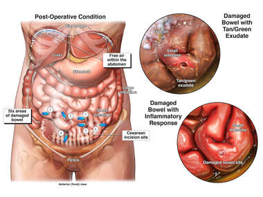 Cesarean Section with Subsequent Bowel Compromise