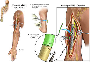 Radial Nerve Injury with Surgical Graft Repair