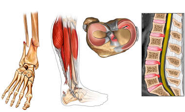 Injuries to the Left Lower Leg Bones-Musculature, Knee and Lumbar Spine