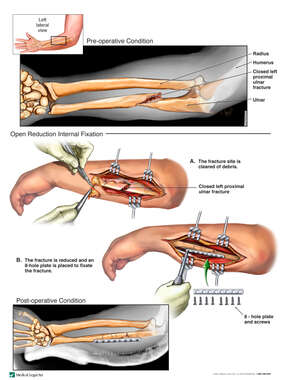 Left Ulna Fracture with Surgical Fixation