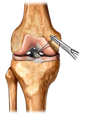 ACL Ligament Repair