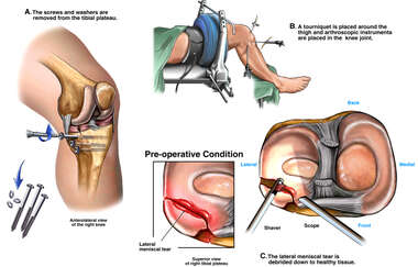 Removal of Tibial Hardware and Arthroscopic Meniscectomy