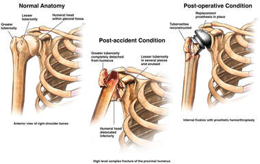 Progression of Right Shoulder Condition
