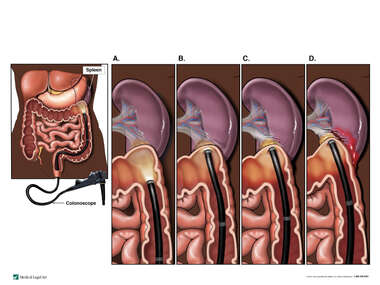 Colonoscopy Procedure with Resulting Damage to the Spleen