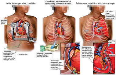 Removal of Pacemaker Wires with Subsequent Hemorrhage