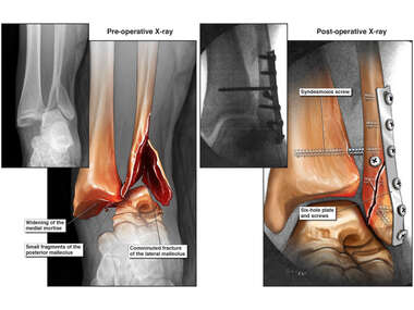 Left Triamalleolar Ankle Fracture with Operative Repair