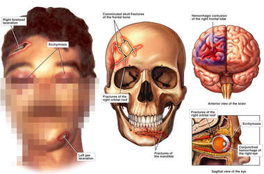 Male with Post-accident Head, Orbit and Brain Injuries