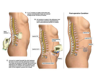 Placement of Permanent Spinal Cord Stimulator