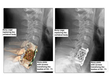 Traumatic Fracture of the C7 Vertebral Body and Subsequent Spinal Injuries