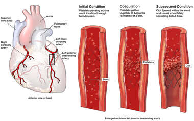 Acute Coronary Clot Formation at Stent Placement Site