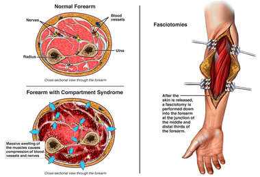 Compartment Syndrome and Surgical Fasciotomy