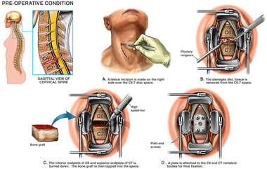 C6-7 Anterior Cervical Discectomy and Fusion
