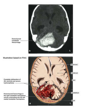 Fetal Brain Injury