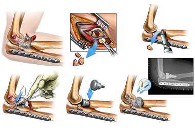 Surgical Fixation of the Radial Head and Coronoid Fracture