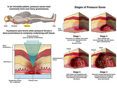 Formation of a Pressure Sore (Bedsore or Decubitus Ulcer)