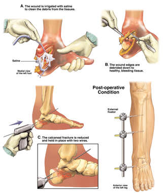Initial Fixation of the Foot with Placement of External Fixator