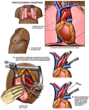 Post-accident Injury of the Thoracic Aorta with Surgical Repair