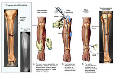 Right Lower Leg Compound Fracture with Surgical Fixation