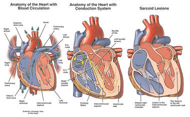 Anatomy of the Heart with Sarcoid Lesions