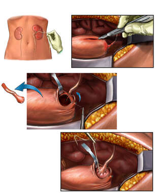 Left Ureteral Reimplantation Procedure