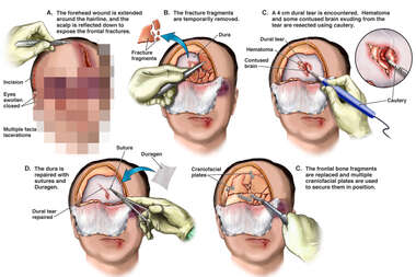 Surgical Reconstruction of Right Frontal Skull Fracture