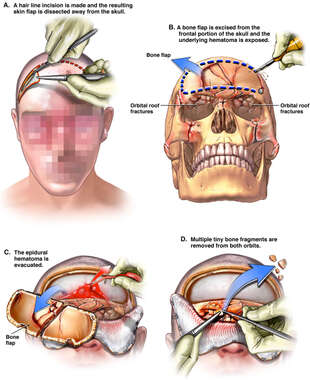 Bifrontal Craniotomy with Initial Debridement