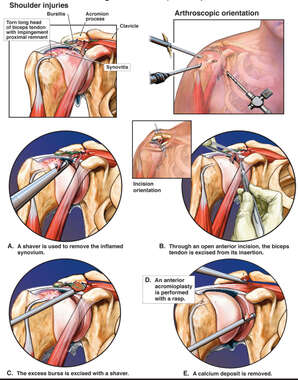 Arthroscopic and Open Surgical Repairs on Right Shoulder